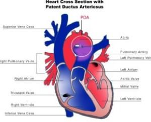 patent_ductus_arteriosus