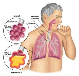pneumonia_anatomy