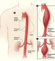 aneurysm_aortic