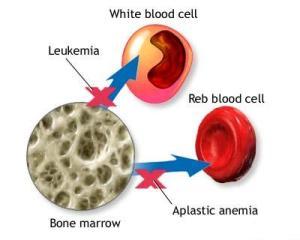 aplastic_anemia