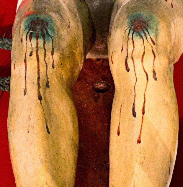 Excoriaciones en la piel que recubre las articulaciones de las rodillas del Santo Cristo de La Grita