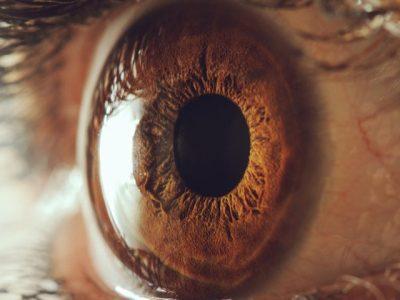 La enfermedad de Gaucher conduce a manifestaciones oculares que requieren diagnóstico temprano, tratamiento y revisión sugieren