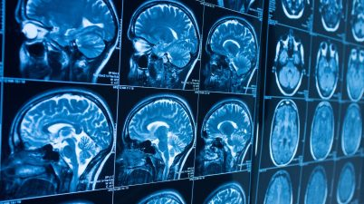 cerveau brain radio