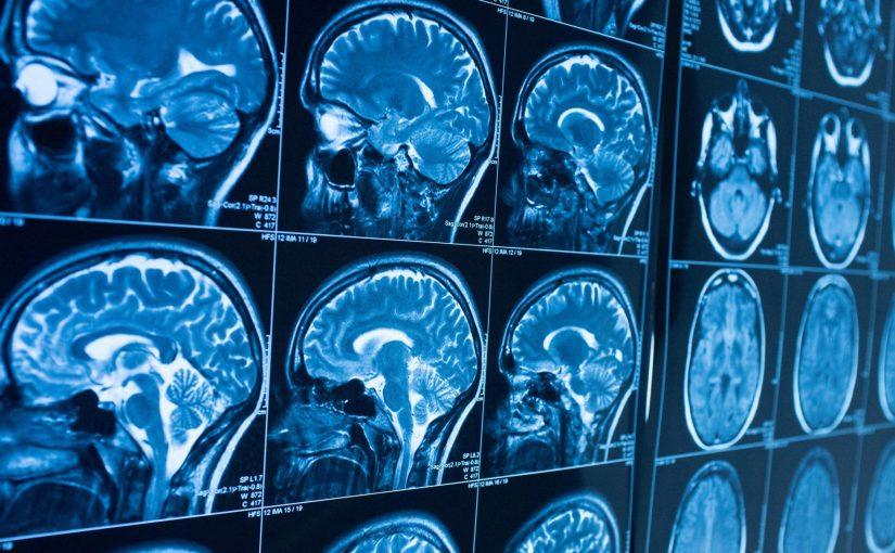 Les scientifiques ont repéré le circuit cérébral qui pourrait aider à effacer la peur
