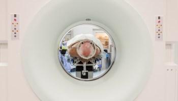 brain électrodes dans le cerveau