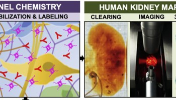 """Small-micelle-mediated Human orgAN Efficient clearing and Labeling"""", ou SHANEL"""