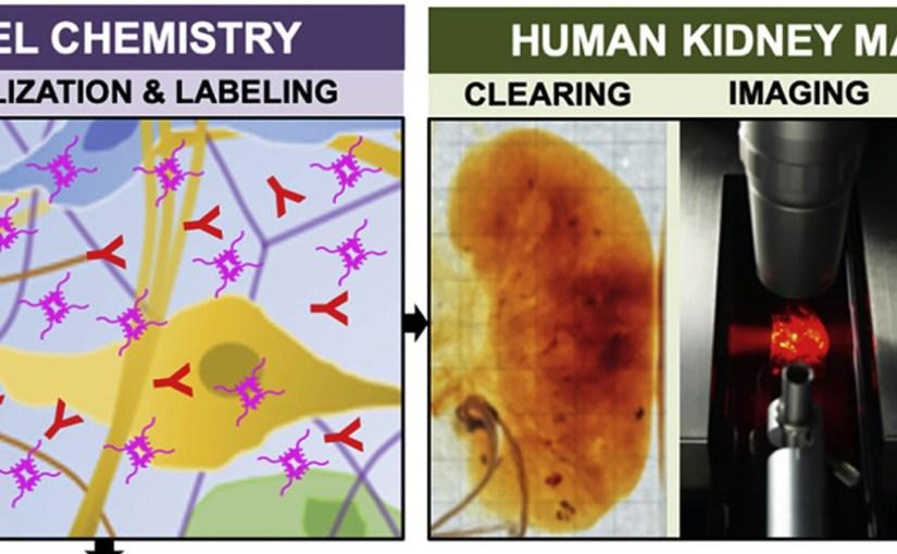Les scientifiques rendent des organes humains entiers totalement transparents