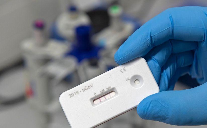 Les tests COVID-19 basés sur CRISPR arrivent