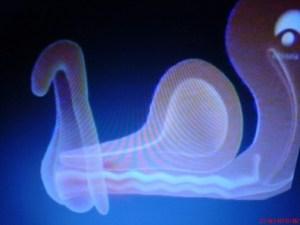 clitorisss