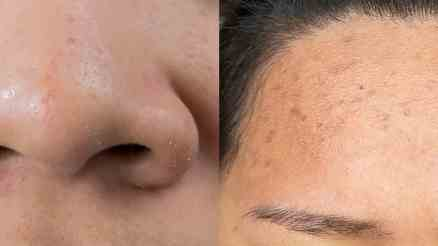 Whitehead vs blackhead feature- ibeuatyguide
