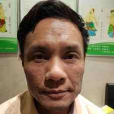 eczema resolved