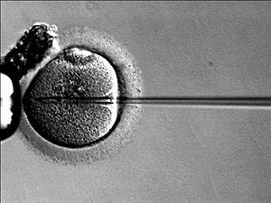 Inyección de un ovocito con espermatozoide