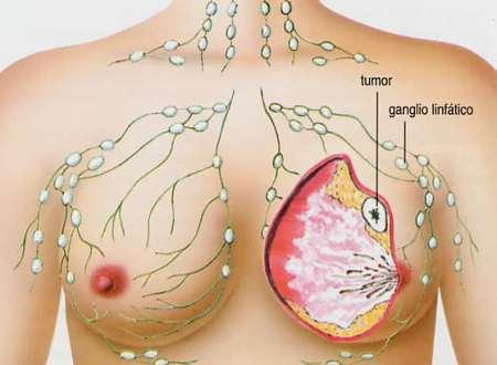 Imagen cáncer de mama