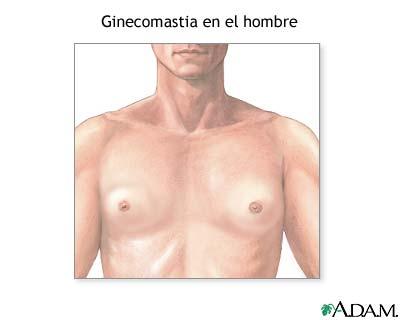 Imagen Ginecomastia en un hombre: agrandamiento de mama