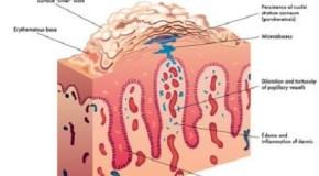 Cuida tu piel: tratamientos de la psoriasis