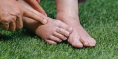 أسباب تورم القدمين عند النساء