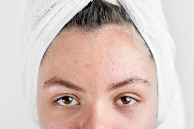 نصائح هامة لعلاج التهاب الوجه واحمراره