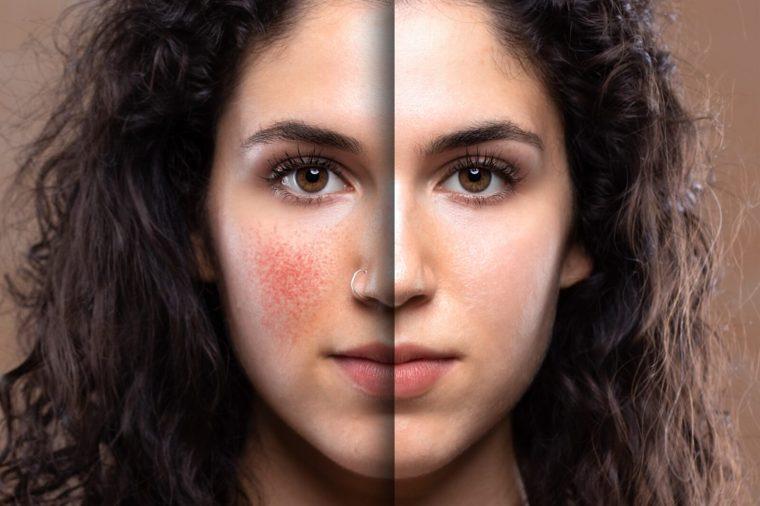 علاج التهاب الوجه واحمراره بالطرق الطبيعية