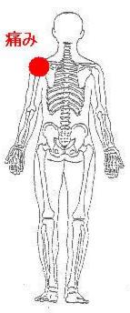 肩 甲骨 の あいだ が 痛い 【肩甲骨が痛い】方、必見です。原因、対処法、予防法を紹介します!