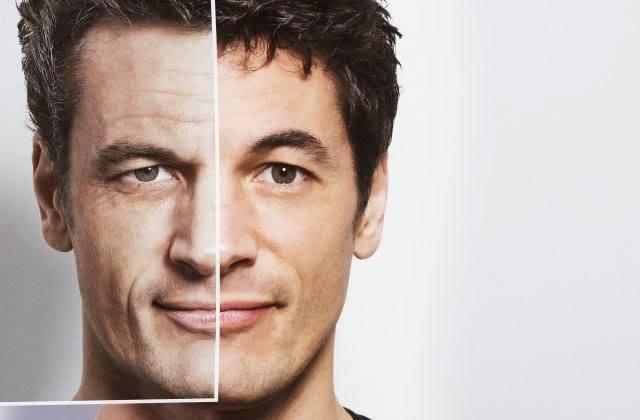 facial rejuvenecer radiofrecuencia