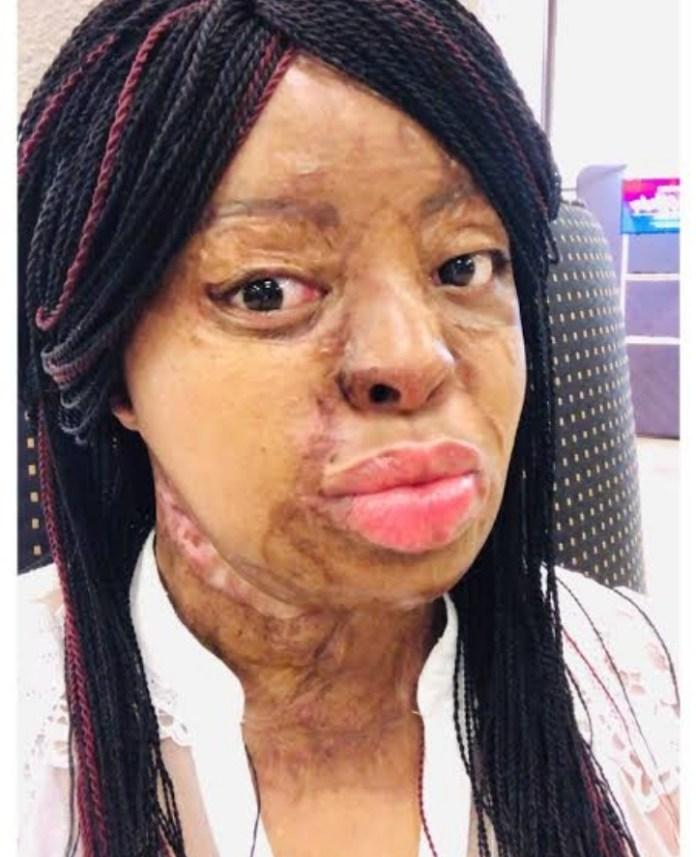 Plane Crash Survivor Kechi Okwuchi Share Photos Of Her Weight Loss Journey