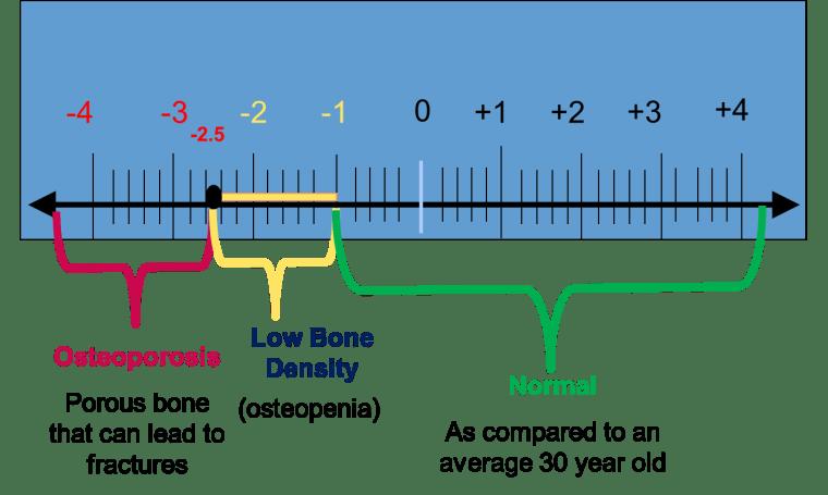 t-score_image