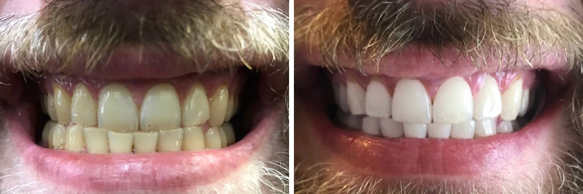 Before and After Teeth Whitening  Ibtisama Beauty