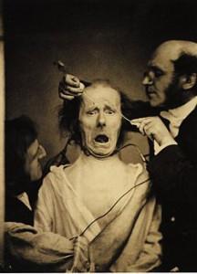 Guillaume_Duchenne_de_Boulogne_performing_facial_electrostimulus_experiments
