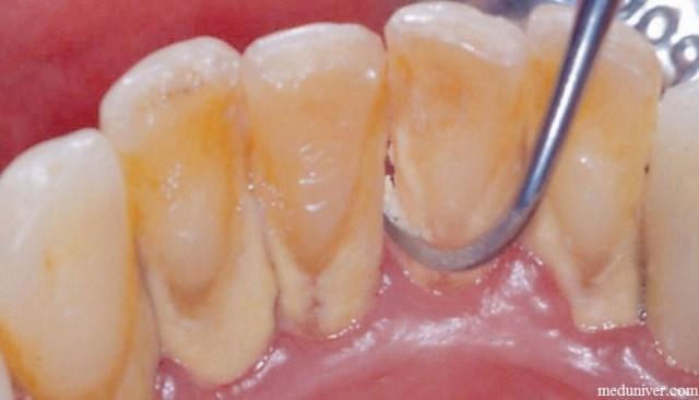 Когда лучше чистить зубы