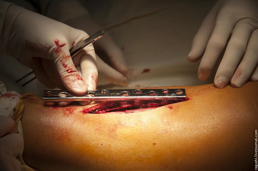 Реабилитация после операции на голени с пластиной. Удаление пластины, спиц и винтов после перелома лодыжки: операция и сроки реабилитации
