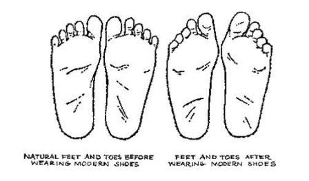 Enlightening foot diagram: zebra363 — LiveJournal