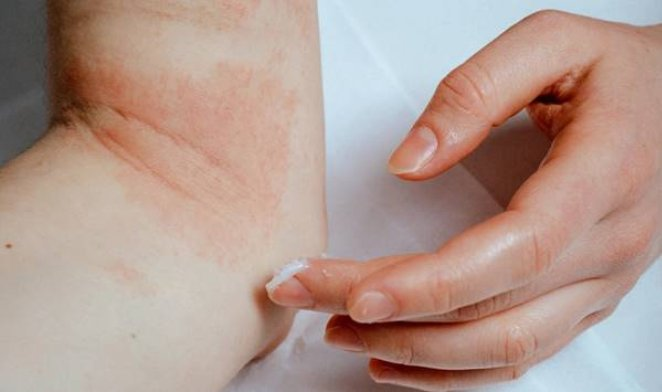 What is atopic dermatitis #3