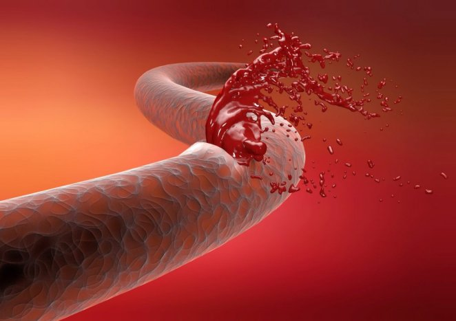 8 signs of blood clotting that you should not ignore #9