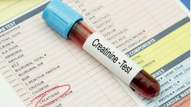 What is creatinine #2