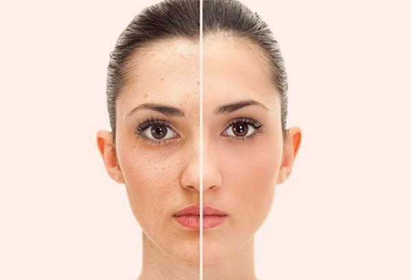 Yüz gerdirmeyi erken yaşta uygulayın
