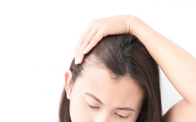 Hair masks can cause baldness #2