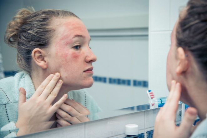 5 common skin diseases in spring #1