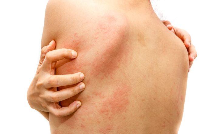 5 common skin diseases in spring #2