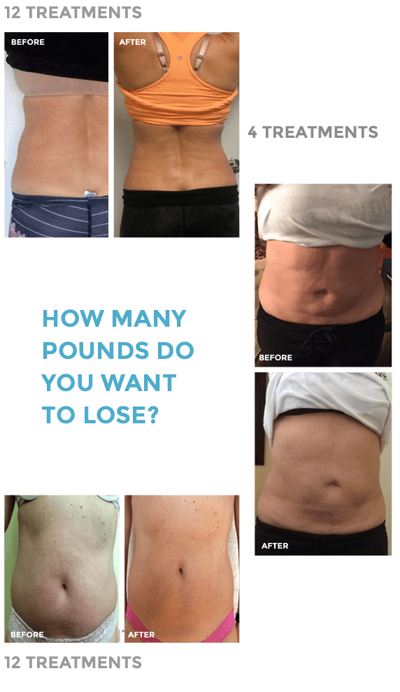 Cryotherapy Weight Loss Reviews : cryotherapy, weight, reviews, Weight, Contour, Light, Costa