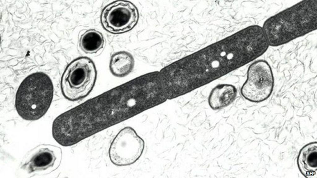 Anthrax case confirmed on farm in Westbury, Wiltshire