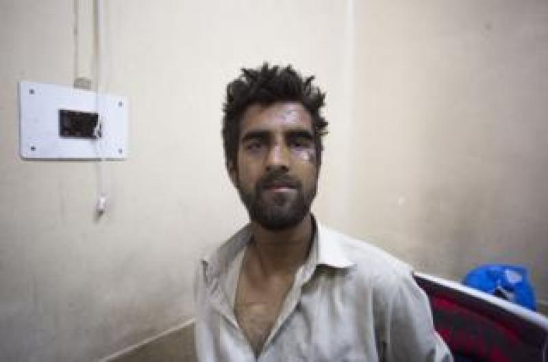 """Waseem Ahmad's face is bruised from a beating in which he was accused of being the """"braid chopper"""""""
