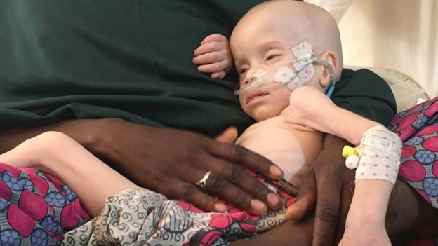 Zara Mustafa and her two-year-old son Ali, an albino, who is starving