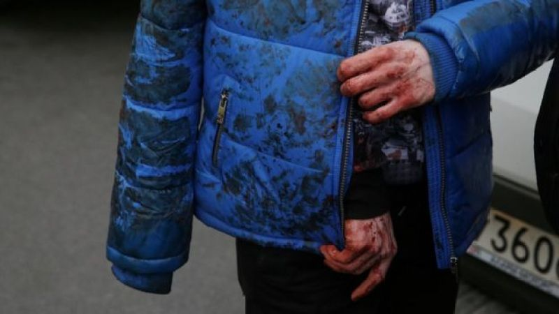 An injured person walks outside Sennaya Ploshchad metro station, following explosions in two train carriages at metro stations in St Petersburg, Russia April 3, 2017
