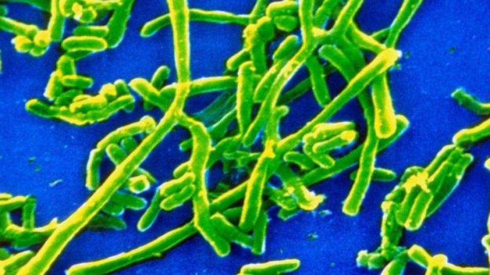 Bactéria 'Corynebacterium diphtheria'