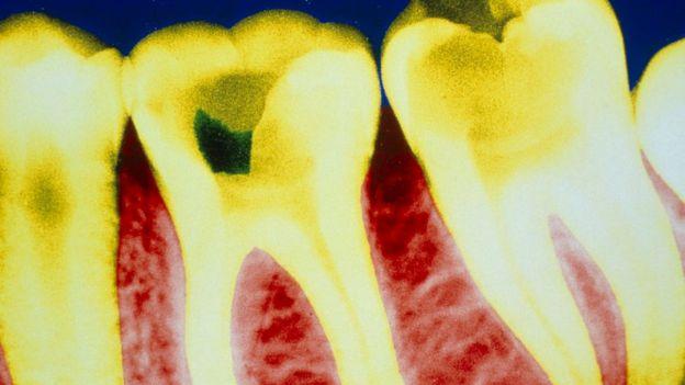 Çürük diş