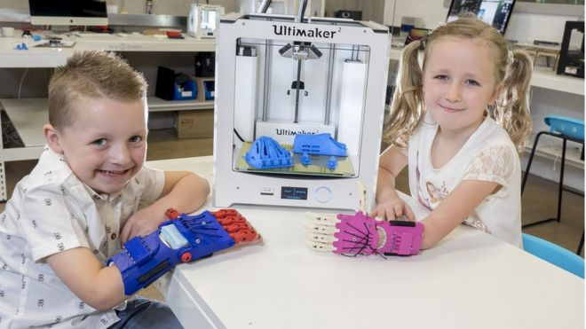 Cian and Emilie showing off their prosthetic hands