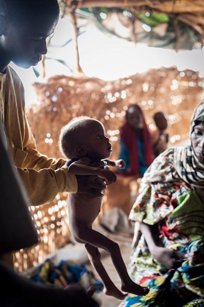 Criança desnutrida na Nigéria