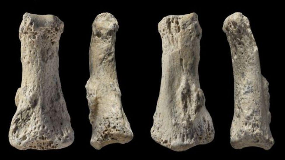 Cuatro imágenes que muestran cuatro lados diferentes del hueso.