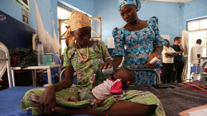 A nutritionist feeds a malnourished baby at the Molai General Hospital Maiduguri, Nigeria. November 30, 2016.