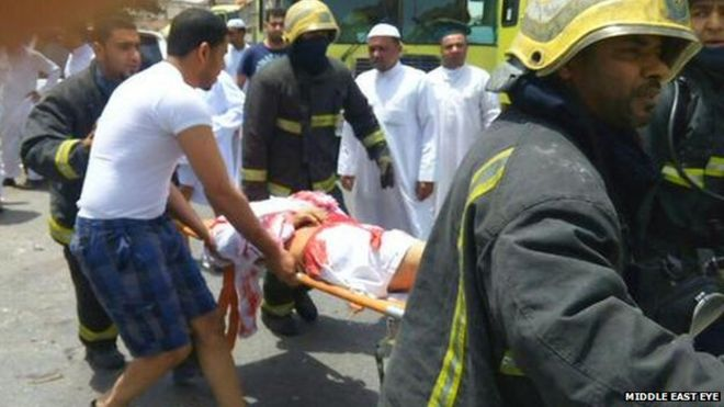 A casualty is stretchered away from Imam Ali mosque in al-Qadeeh, Saudi's Eastern Province, after a suicide bomber struck Friday prayers (image courtesy Middle East Eye)